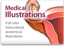 Medical illustrations